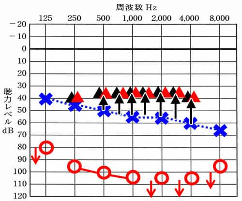 """▲が補聴器で聞こえを改善させられる目標値だとすると、そこまで▲(補聴器装用時に聞こえている数値)を持ってきて、聞きにくさを改善させる。そして、これは、どの補聴器でもできるようになっている。補聴器がしていることは、聴力が低下した部分を補聴器で補える範囲まで、補うこと。具体的には、<span style=""""color: #ff0000;"""">▲</span>が補聴器で聞こえを改善させられる目標値だとすると、そこまで▲(補聴器装用時に聞こえている数値)を持ってきて、聞きにくさを改善させる。そして、これは、どの補聴器でもできるようになっている。"""