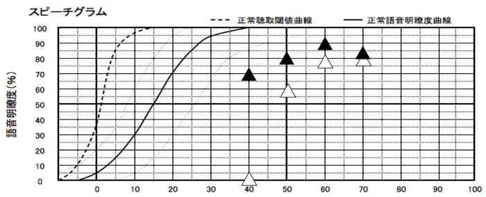 補聴器をつけることにより、どのように理解できているのか。を調べる測定も実施。結果としては、それなりに良い結果に。実際に効果が大きいのは、聞こえなかった左側で、これと同等くらいにまで改善できていることを考えると、バイクロス補聴器にすることで、改善できた例としては、それなりに良いケース。