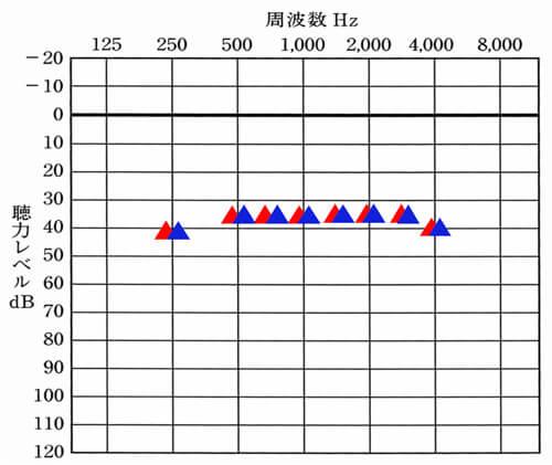 補聴器の世界には、補聴器を装用した状態でどのくらい聞こえているのかを調べる測定(音場閾値測定)があります。その測定で、バランスよく補えていると、聞こえも補いやすく、かつ、左だけが聞こえる……というようなアンバランスな状態を減らすことができます。