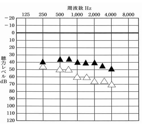こちらは、補聴器使用時の測定の一つ、音場閾値測定(おんじょういきち測定)の結果です。▲が補聴器使用時、△が補聴器なしを表します。