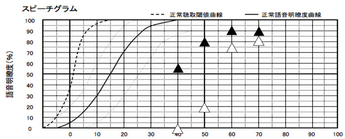 最後にある程度、改善したら、音場での言葉の測定を行います。改善前にこちらを行なっても、良い数値にはならないので、タイミングに注意です。最後は、こちらで、広い音の範囲、50dB、60dB、70dBなど測定し、改善できているのかを見れると、よりベストになります。
