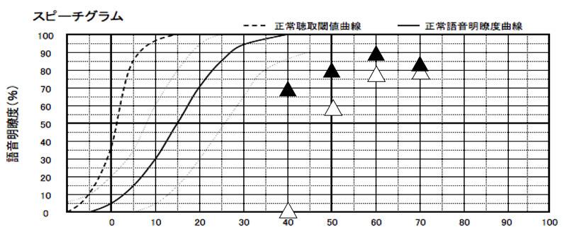 こちらの場合、補聴器なしの状態で、80%が最良の結果になっています。そのため、50dB、60dB、70dBで、70〜80%、もしくは、それ以上のパーセンテージになっていれば、良い状態です。なお、この基準は、かなり高い方ですので、実際には、ここまでよくならない方もいます。