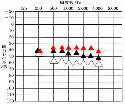 次は、調べてみた結果、現状の改善値が少し足りないケースです。この場合は、音の体感により、対処が大きく変わります。