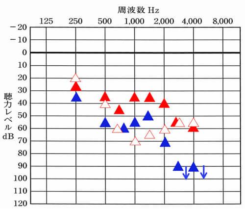 """こちらは、音場閾値測定というもの。聴力検査の補聴器版で、上に行くと行くほど、聞こえやすく、横軸は、音の高さを表します。<span style=""""color: #ff0000;"""">▲</span>が右のみ補聴器使用。<span style=""""color: #ff0000;"""">△</span>が右のみの補聴器なし。<span style=""""color: #0000ff;"""">▲</span>が左のみの補聴器あり、<span style=""""color: #0000ff;"""">△</span>が左のみの補聴器なし。"""