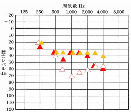 ▲は、補聴器を装用した時に改善できていると良いおおよその数値。右側は、だいたい35dBから30dBくらいになります。