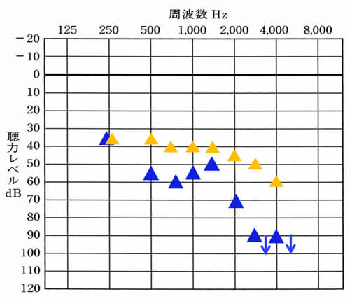 こちらは、左側のみの状態。▲の位置が左側における改善目標値です。〜2000Hzあたりまでは、40〜45dBくらいが目安になります。