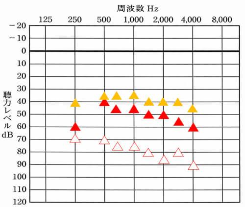 ▲が補聴器使用時の目標となる聞こえ。右側は、全体的に低いことがわかり、状況を伺ってみると、右側からは、聞こえる感覚もほとんどわからない。という状況でした。