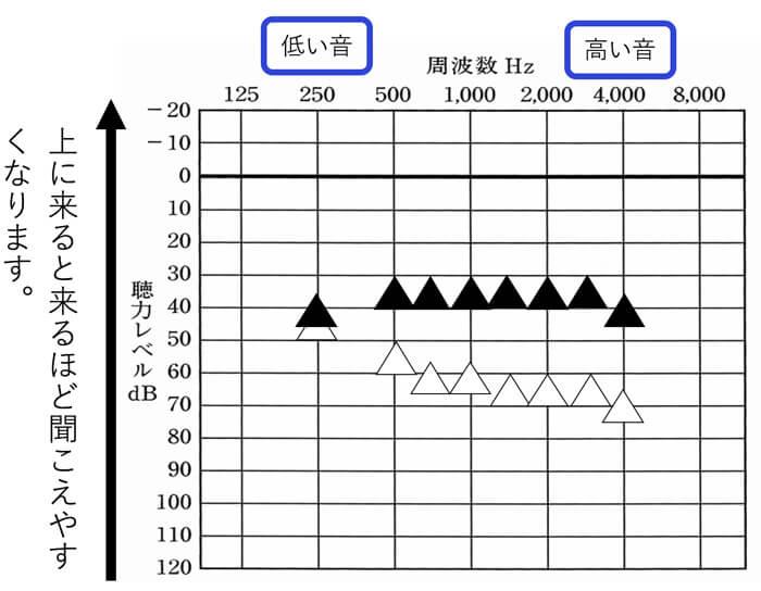 補聴器版の聴力検査のようなものですので、グラフや意味も聴力検査とほとんど同じです。それが、音場閾値測定になります。
