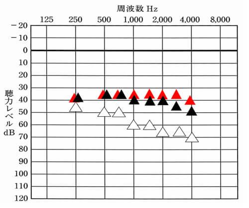 ▲が補聴器で目指す聞こえの改善値。▲が補聴器を装用している時の現状の聞こえ。1000Hz〜4000Hzは、目標値よりも少し低下している。このような際、その部分だけをあげたりすることがチャンネルが多い場合、しやすくなる。