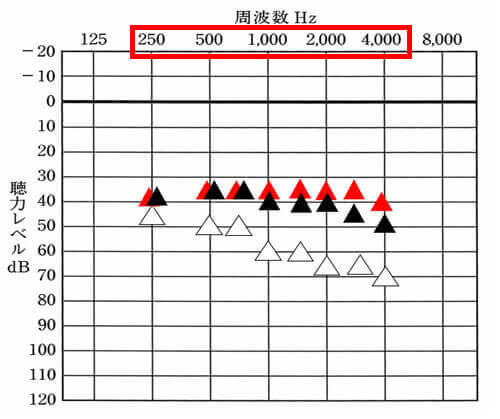 今現在調べられる周波数は、250Hz、500Hz、750Hz、1000Hz、1500Hz、2000Hz、3000Hz、4000Hzの計、8つ。そのため、12chあれば、それぞれの部分をよくしやすい。