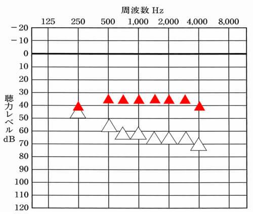 70dB手前までの聴力でしたら、だいたい35dBほど改善できると良いです。両端(250Hz、4000Hz)は、-5dBくらいになると良いですね。なお、中には、35dBではなく平均30dBほどまで改善するケースもありますが、周囲の音が大きくなったり、良くも悪くも聞こえがよくなりますので、あくまでも使える方のみになります。