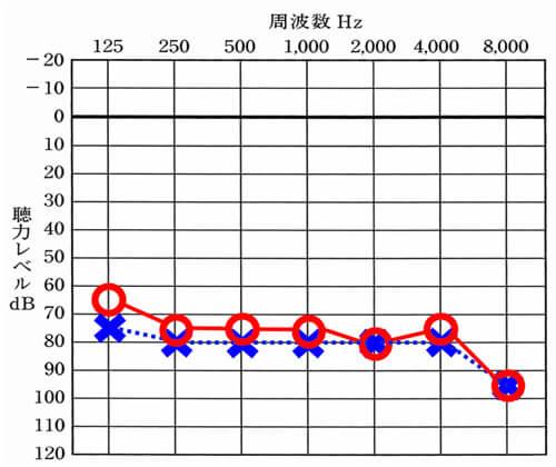 ハウリングは、65Bくらいからかなりしやすくなります。この聴力と同等か、それ以下の方は、イヤモールドをつけた方が、快適に補聴器が使いやすくなります。