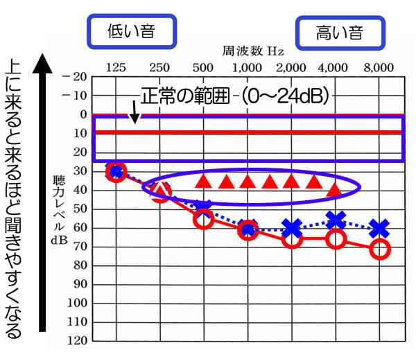 今現在、補聴器で改善できる数値は、▲の位置くらいです。ここまで改善できると、それなりに聞きやすくなります。