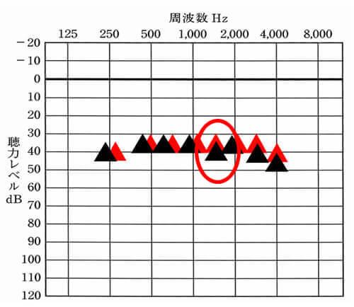 こちらは、補聴器使用時の状態を測定したものです。しかし、測定してみると思ったより、補えていない。ということがたまに起こります。そのような時にそこだけ、補う。ということがチャンネルが多いとしやすくなります。
