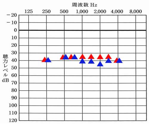 ▲が右側、▲が左側を表す場合、そして、左右の聴力差は、大きくなく(10〜15dBほど)、左が少し聞きにくい様子があるのでしたら、右側と同じくらいまで、左側を改善させてあげると、バランスも取りやすく、かつ、聞きにくさの改善もしやすくなります。同じくらい聞こえているところは、そのままで、それに足りていない部分だけを補えば、効率的に補うことができます。