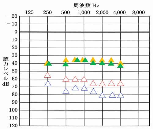 """これは、補聴器使用時の測定も同様です。印が多くて申し訳ないのですが、<span style=""""color: #ff0000;"""">△</span>が右側の補聴器なし。<span style=""""color: #ffcc00;"""">▲</span>が右側の改善目標値。<span style=""""color: #0000ff;"""">△</span>が左側の補聴器なし。<span style=""""color: #339966;"""">▲</span>が左側の改善目標値。となります。色が多いので、改善目標値は、それ以外の色で記載しています。"""