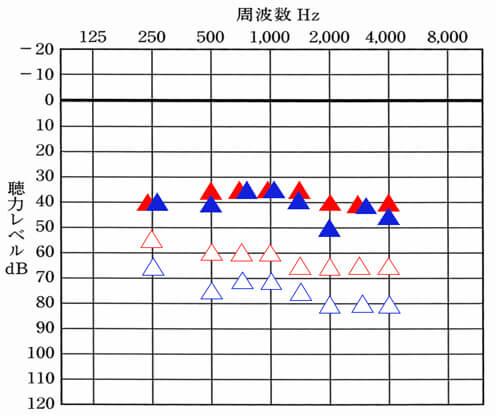 ▲が右側のみの補聴器使用時。▲が左側のみの補聴器使用時。状況を把握できれば、自ずと、状況を改善させることもできるようになります。なお、こちらの数値と先ほどの改善目標値を合わせることにより、現状はどうなのかもわかるようになります。
