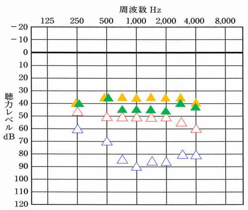 """聴力からのおおよその改善目標値。<span style=""""color: #ffcc00;"""">▲</span>が右側、<span style=""""color: #339966;"""">▲</span>が左側の改善目標値です。聴力は、下がると下がるほど、補いにくくなるため、改善目標値が異なります。"""