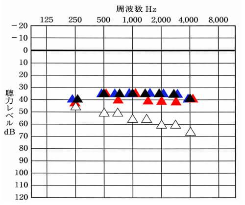 音場閾値測定に関しては、こちらのように▲両耳とも装用した状態、▲右側だけ装用した状態、▲左側だけ装用した状態。も調べることができます。それにより、左右のバランスも見ることができます。基本的に、横並びになっているものは、同じような状態で聞こえていることを意味します。