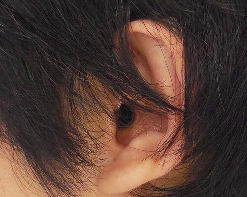 少し髪が多くなると、隠れてしまうくらいのサイズになります。耳から、少し見えている状態には、なりやすいです。