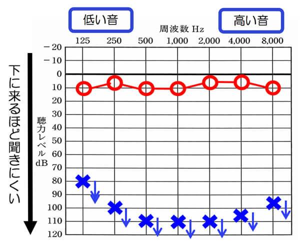 聴力図(オージオグラム)○が右側、×が左側を表します。下に来るほど、耳は、聞こえにくくなります。こちらの場合は、左側がかなり聞きにくくなっている状態です。