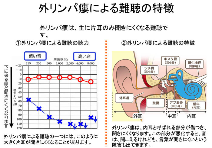 外リンパ瘻は、片耳のみ大きく低下することがある。難聴の一つです。内耳(ないじ)と呼ばれる部分が、損傷し、聞きにくくなります。