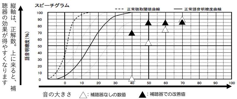 補聴器を使用した状態の音声の聞き取りテストです。70dB=少し声が大きい方、60dB=普通の声の大きさの方、50dB=ちょっと声が小さい方、離れたところからの音声(2〜3m)、40dB=小声の方、となります。大きいところでの聞き取りは、若干、補聴器使用時が低いものの全体的に、改善は、できるようにしました。
