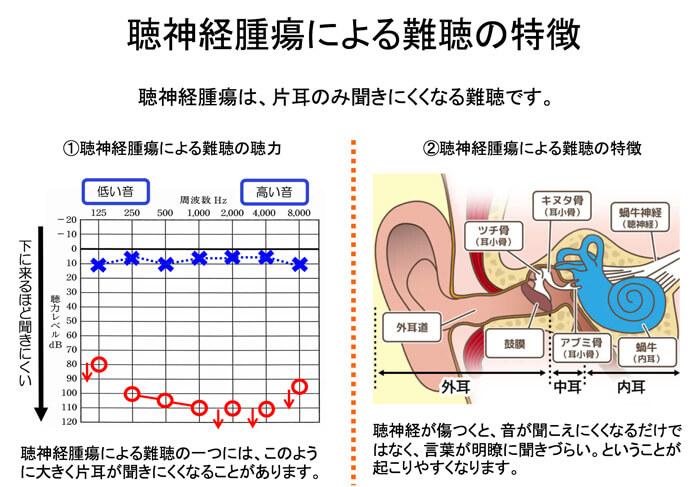聴神経腫瘍により、聞きにくくなるケースのポイントは、聴神経が傷つくことにより、聴力が低下することと、言葉の明瞭性が失われることです。特に音声に関しては、低下する傾向が多く、補聴器を装用しても、その部分は、改善されないことが多くなります。それゆえ、補聴器の効果は、かなり限定的になるか、ほぼない状態になります。