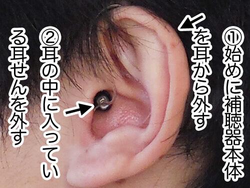 外すときも同じように、補聴器本体を初めに外し、その後、耳せんを外すとやりやすいです。