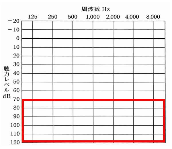 対象ケース①。両耳が70dB以下の場合は、対象になります。聴力低下の度合いにより、等級レベルが変化します。