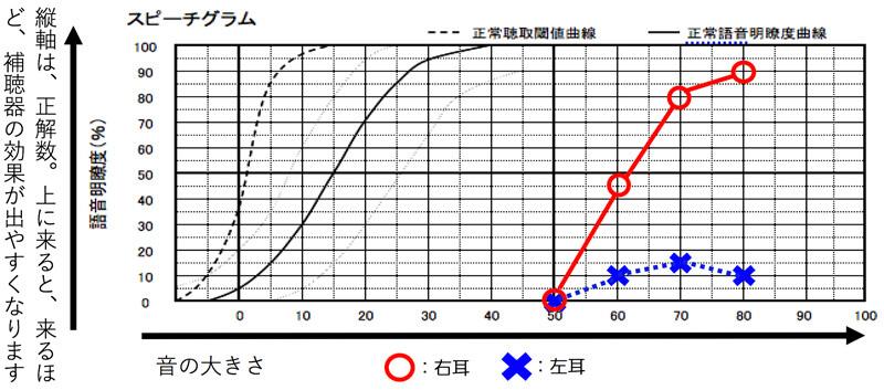 逆に、かなり低い場合は、バイクロス補聴器の方が、改善できる確率は、高くなります。
