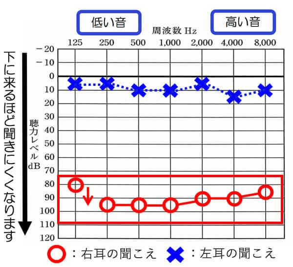 聴力の低下が非常に大きいため、このような方は、補聴器での改善度も低くなります。そのため、少しでも、改善するよう、クロス補聴器で改善していくことにしました。