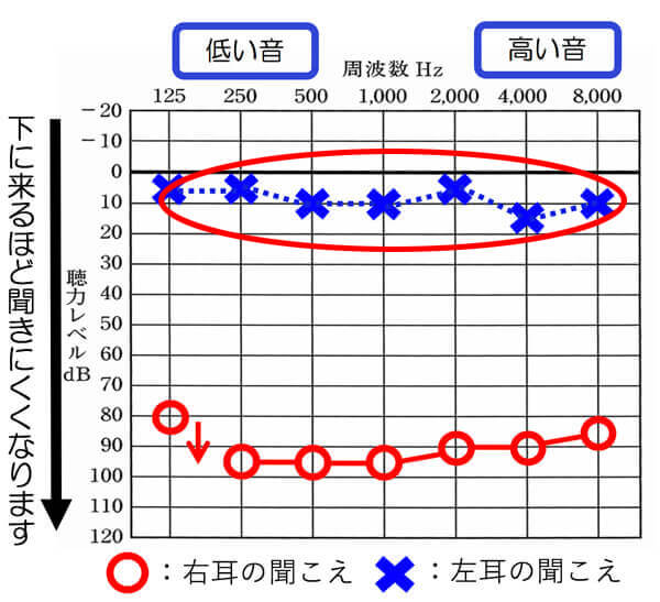 聞こえている左側は、正常の範囲内(0〜25dBまでが正常の範囲)ですので、耳あな形を使用すると、聞きづらくなってしまいます。
