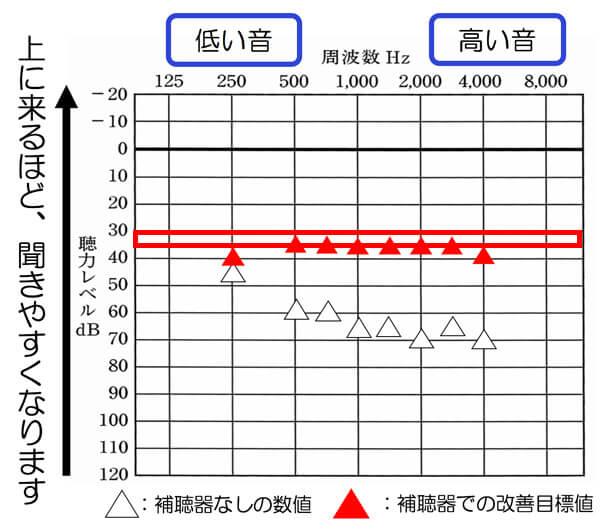 今現在、中等度難聴ほどであれば、30dB、35dBくらいまで改善できるようになってきています。そこまで、改善できると、少し声の小さい方でも、改善しやすくなり、よりよくなる傾向があります。