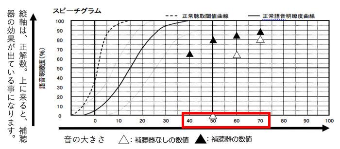 音声の大きさには、いくつかありますが、30dBくらいまで改善できると、小さい声の方(40dB)も、改善しやすくなりますので、広い範囲で改善しやすくなります。