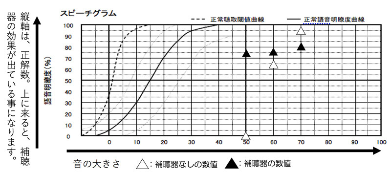 70〜50dBまでは、平均的に改善するように。ただ、補聴器なしの状態で、一部のみ、いい結果が出ているため、評価が非常に難しい。本当は、もう少し改善したいところですが、これ以上、大きくしたりすると、響きが強くなるため、大きくする事ができず。