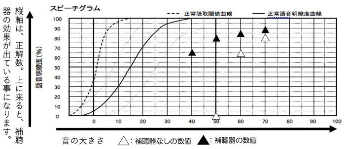 補聴器の世界には、言葉の聞こえを調べるものもあります。語音明瞭度測定、語音弁別脳検査。という言い方をします。