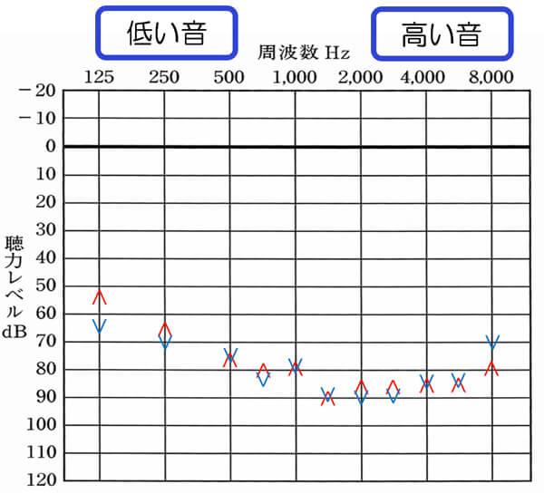 上の赤が右側。下の青が左側を表します。基本的に聴力が50dBくらいの場合は、不快閾値は、100〜105dBくらいが妥当です。それからすると、全体的に少し低いのがわかります。