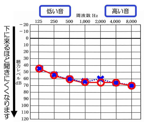 ボレロBーPは、このように低い音から高い音まで、全体的に下がっている方に合いやすい補聴器です。全体的に補うのが得意な補聴器なためですね。
