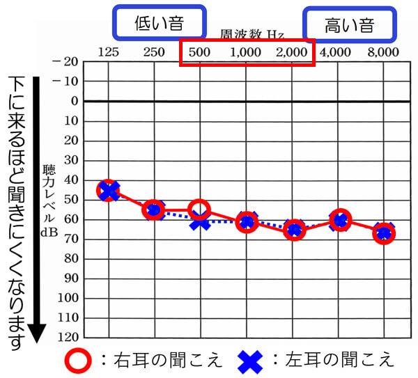 平均聴力を出す際は、基本的に右耳:○、左耳:×の部分を計算していきます。
