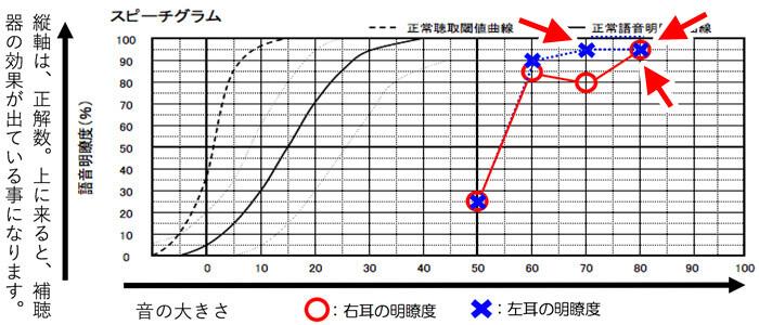 数値を見る場合は、一番正解数が高いところを見ます。この場合ですと、左耳が、70dBのところ、80dBのところで95%で、高い部分になります。右耳の場合は、80dBで95%まで、出ていますね。