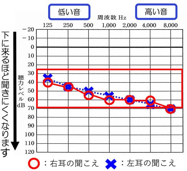 赤い枠の中が、軽度・中等度難聴になります。この範囲内に概ね入っていれば、対象となります。