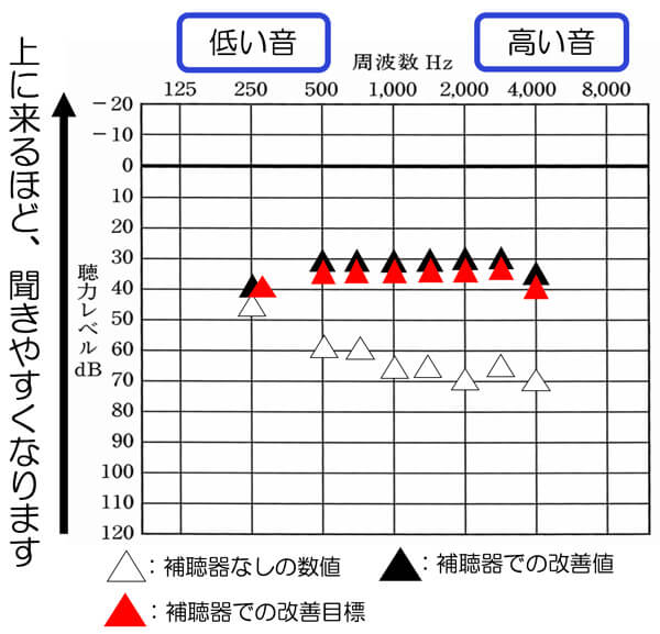 補聴器には、聴力検査のような補聴器を使用したまま、どのくらい音が聞こえているのかを調べる測定があります。それで、調べたのが、この図です。