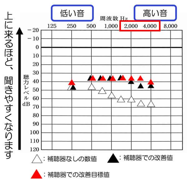 2000〜4000Hzは、アラーム系が多いです。例えば、体温計の音などは、4000hz付近が多いですね。体温計まで聞こえるようにするには、だいたい、3000Hz〜4000Hzが、45dBから40dBくらい必要になります。