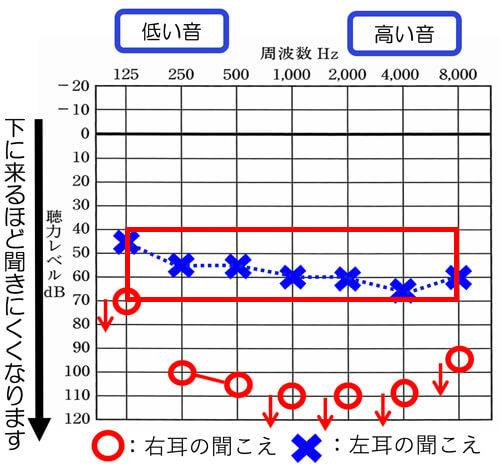 バートB-312、フォナッククロスB-312 カスタム(耳あな形)が合いやすいのは、全体的に低下している方です。このような方は、比較的、こもり、響きは、まだ、感じにくい傾向があります。