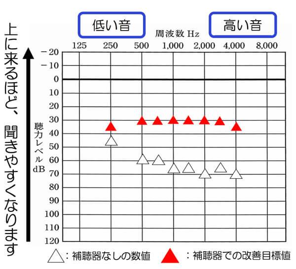 あくまでも私自身が感じている感覚ですが、全体的に30dB付近まで改善できると、40 dBの小さい入力音の部分も改善しやすくなる傾向を感じます。50dBまででいいのであれば、35dBまで、改善できると、改善しやすくなります。