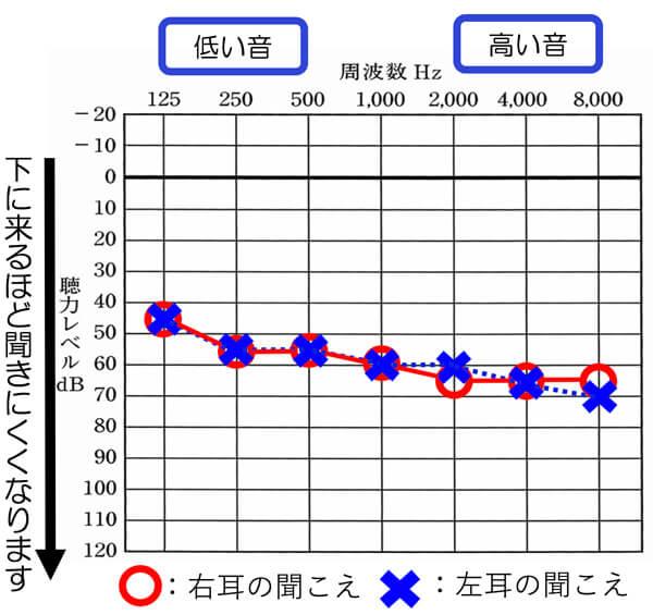 得意な聴力型はあるものの、基本的には、どのような聞こえでも改善しやすくなってきています。