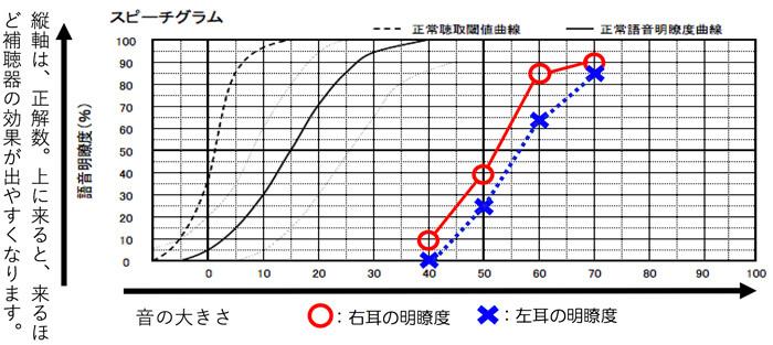 こちらが実際の測定図です。各それぞれの音量別に明瞭度を見る事で、どのくらい理解できているのかを見る事ができます。40dBは、小さい声の方の音量、50dBは、少し小さい声の人の音量、60dBは、普通くらいの声の音量、70dBは、少し大きな人の声の音量くらいになります。