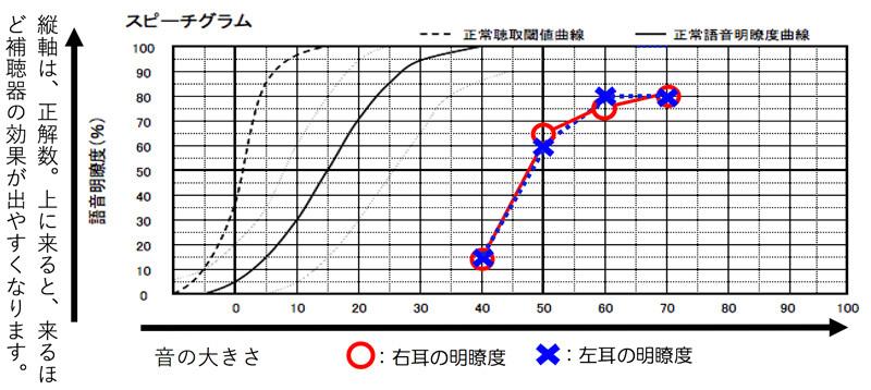 高音漸傾型の場合は、音を大きくする事で、明瞭度は、よくなりますが、90%、100%まで伸びるのは、かなり少なくなります。ただ、高域をしっかり補う事で、測定値以上の数値を出せることもあるのが、この聴力の特徴です。