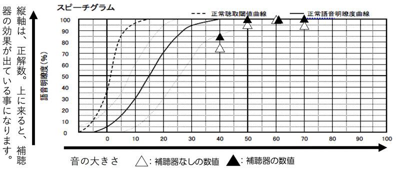 補聴器には、補聴器を装用した状態で言葉の聞こえを調べるものがあります。ただ、こちらは、元々の数値がかなりよかったため、補聴器を装用しても、そこまで上がらず。